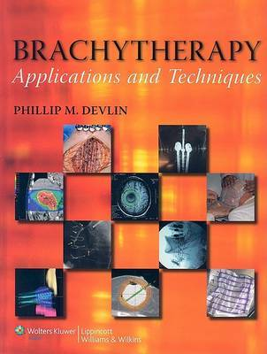 Brachytherapy: Applications and Techniques image