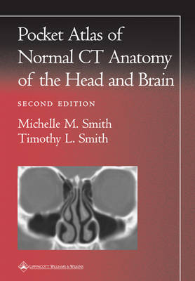 Pocket Atlas of Normal CT Anatomy of the Head and Brain by Michelle M. Smith