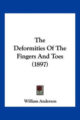 The Deformities of the Fingers and Toes (1897) by William Anderson