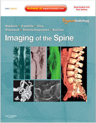 Imaging of the Spine: Expert Radiology Series, Expert Consult by Charles Raybaud
