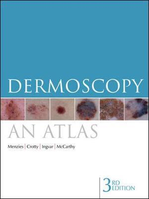 Dermoscopy: An Atlas by Scott W. Menzies