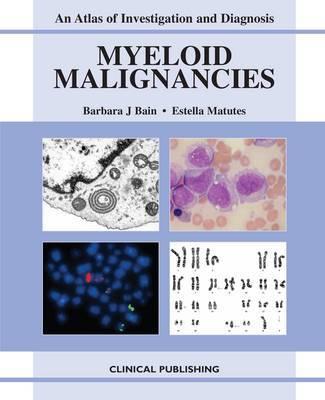 Myeloid Malignancies
