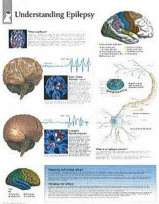 Understanding Epilepsy by Scientific Publishing