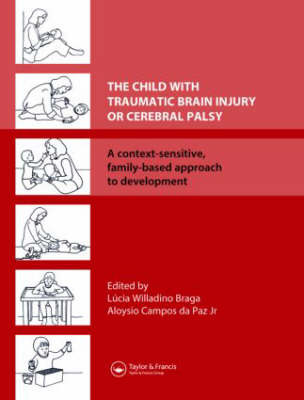 The Child with Traumatic Brain Injury or Cerebral Palsy image