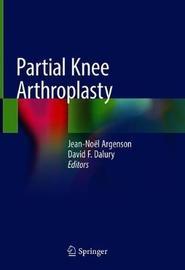 Partial Knee Arthroplasty image