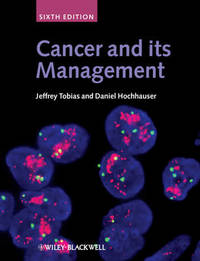 Cancer and Its Management image
