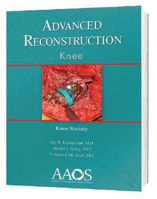 Advanced Reconstruction: Knee by Jay R. Lieberman