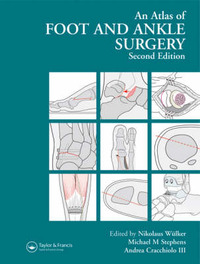 Atlas Foot and Ankle Surgery, Second Edition image