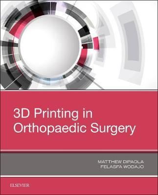 3D Printing in Orthopaedic Surgery by Matthew Dipaola