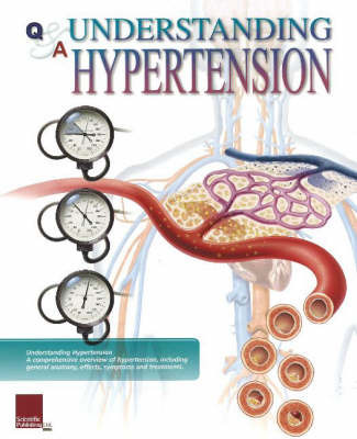 Understanding Hypertension Flip Chart by Scientific Publishing image