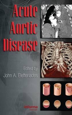 Acute Aortic Disease image