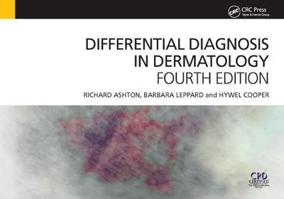 Differential Diagnosis in Dermatology, 4th Edition by Richard Ashton image