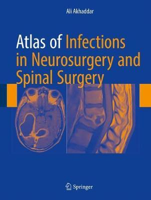 Atlas of Infections in Neurosurgery and Spinal Surgery by Ali Akhaddar