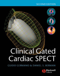 Clinical Gated Cardiac SPECT by Guido Germano image