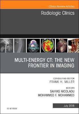 Multi-Energy CT: The New Frontier in Imaging, An Issue of Radiologic Clinics of North America by Savvas Nicolaou