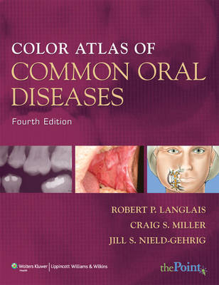 Color Atlas of Common Oral Diseases by Robert P. Langlais