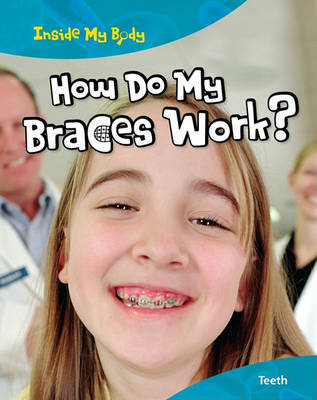 How Do My Braces Work? by Steve Parker