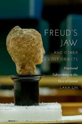 Freud's Jaw and Other Lost Objects by Lana Lin