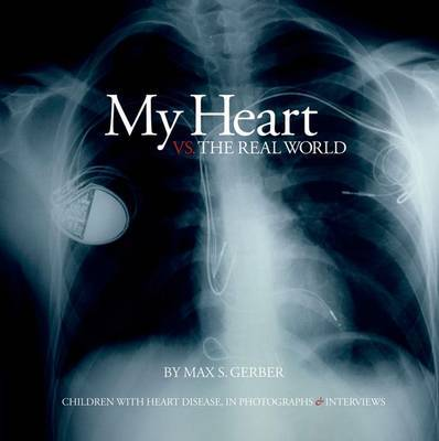 My Heart Vs. the Real World by Max S. Gerber image