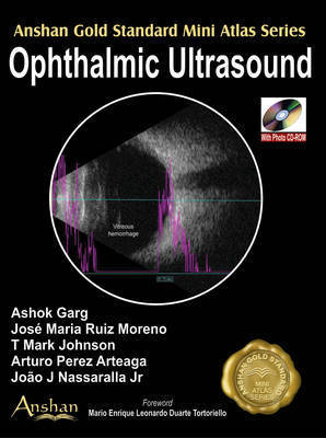 Mini Atlas of Ophthalmic Ultrasound by Ashok Garg