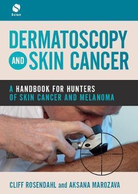 Dermatoscopy and Skin Cancer by Cliff Rosendahl