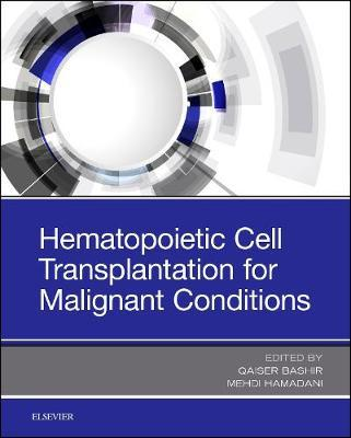 Hematopoietic Cell Transplantation for Malignant Conditions image