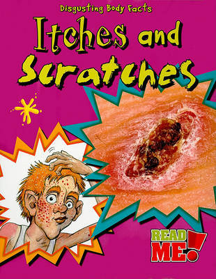 Itches and Scratches by Angela Royston image