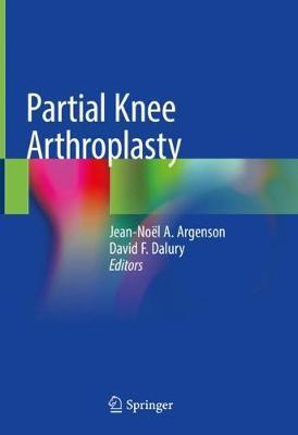 Partial Knee Arthroplasty image