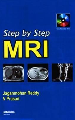 Step by Step Pediatric MRI by PRASAD