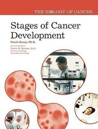 Stages of Cancer Development by Paraic Kenny image