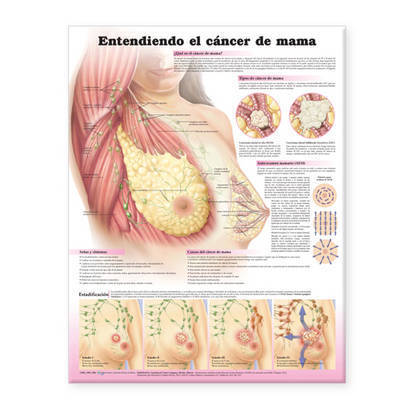 Understanding Breast Cancer Anatomical Chart in Spanish (Entendiendo El Cancer De Mama)