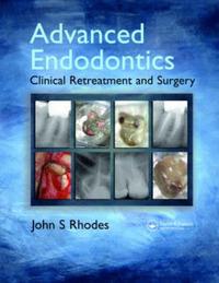 Advanced Endodontics by John S. Rhodes image