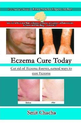 Eczema Cure Today - Get rid of Eczema forever natural ways to cure Eczema by Smit Chacha