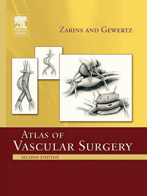 Atlas Of Vascular Surgery - Paperback Edition by Christopher K. Zarins