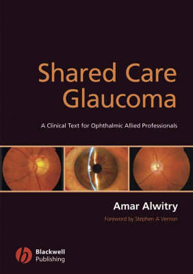 Shared Care Glaucoma by Amar Alwitry image