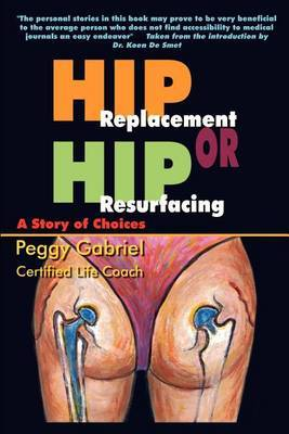 Hip Replacement or Hip Resurfacing: A Story of Choices by Peggy Gabriel image