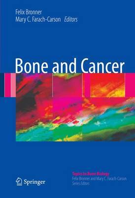 Bone and Cancer image
