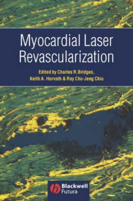 Myocardial Laser Revascularization image