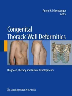 Congenital Thoracic Wall Deformities