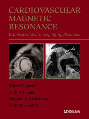 Cardiovascular Magnetic Resonance: Established and Emerging Applications image