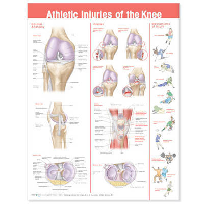 Athletic Injuries of the Knee Anatomical Chart image