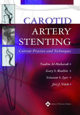 Carotid Artery Stenting: Current Practice and Techniques image