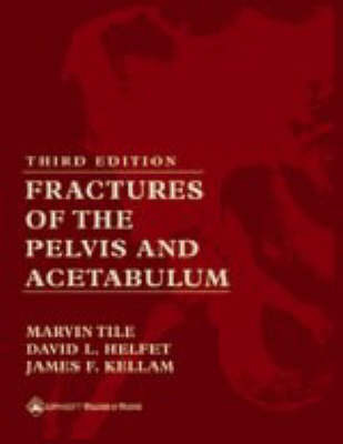 Fractures of the Pelvis and Acetabulum image