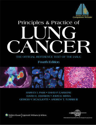 Principles and Practice of Lung Cancer image