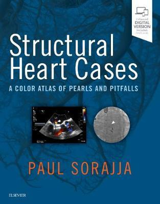 Structural Heart Cases by Paul Sorajja