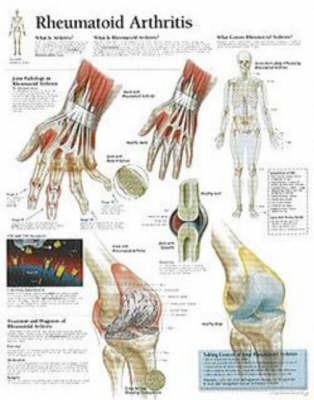 Understanding Rheumatoid Arthritis image