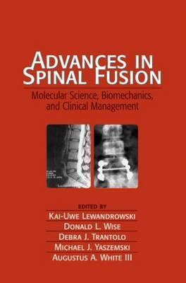 Advances in Spinal Fusion by Kai-Uwe Lewandrowski image