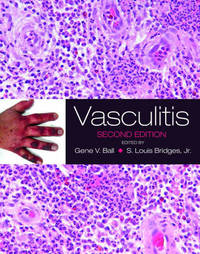 Vasculitis by Gene V. Ball image