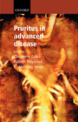 Pruritus in Advanced Disease by Zbigniew Zylicz image