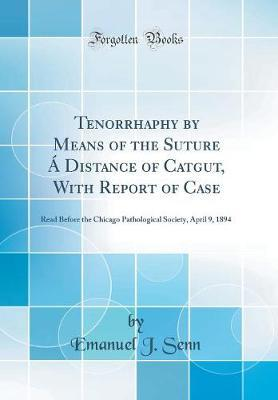 Tenorrhaphy by Means of the Suture � Distance of Catgut, with Report of Case by Emanuel J Senn